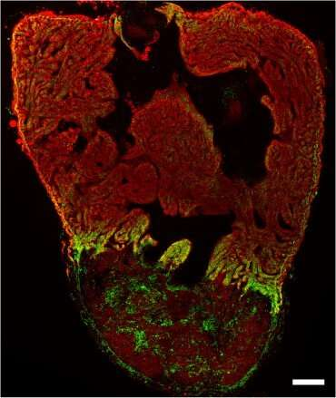 Heart muscle cells change their energy source during heart regeneration