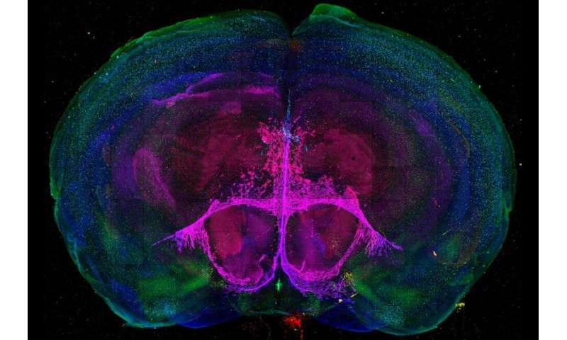Researcher develops method for mapping brain cell change, development in mice