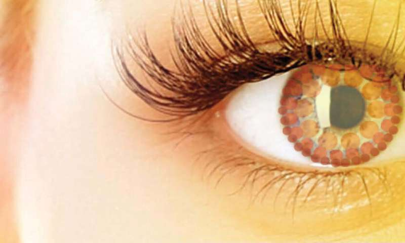 Three Ways to Know You Have Glaucoma
