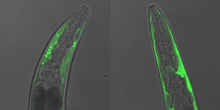 Scientists identify new target for Parkinson's therapies
