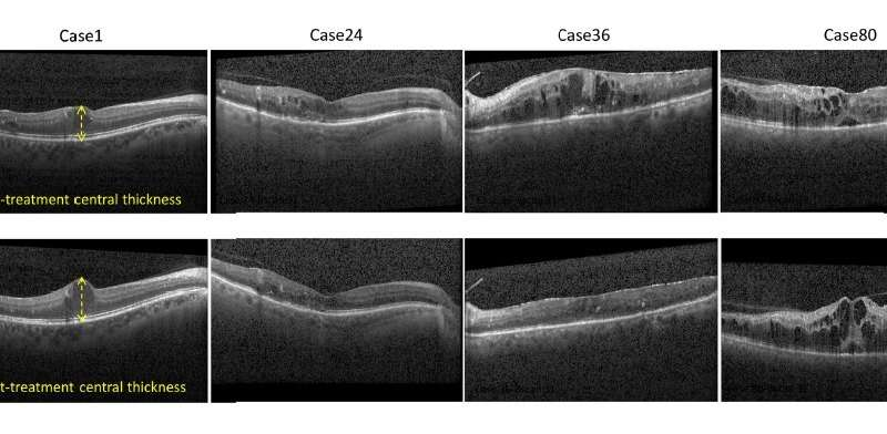 Artificial intelligence predicts treatment outcome for diabetes-related vision loss