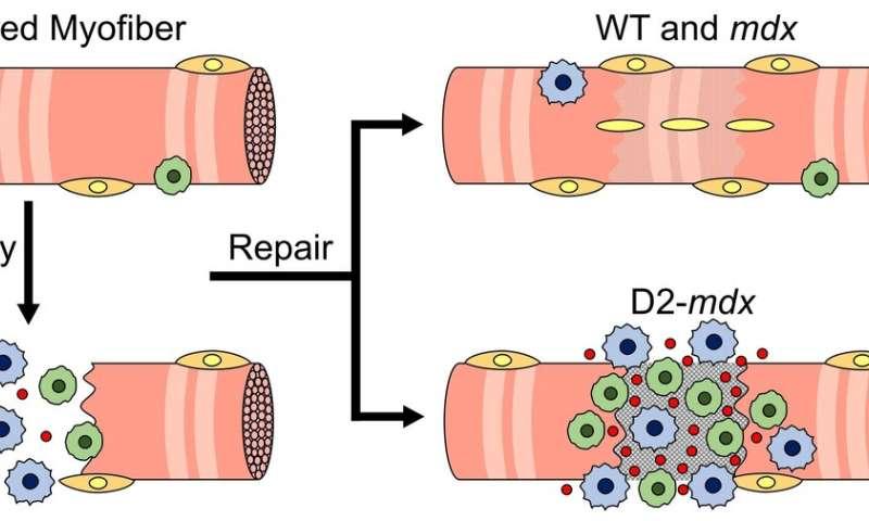 Un modèle expérimental imite le déficit myogénique à un stade précoce chez les garçons atteints de DMD