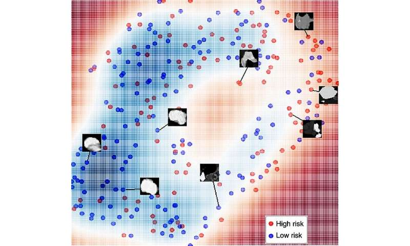 Neural network can determine lung cancer severity