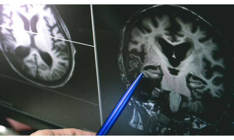 Racial disparities exist in cognitive health expectancies despite educationalattainment