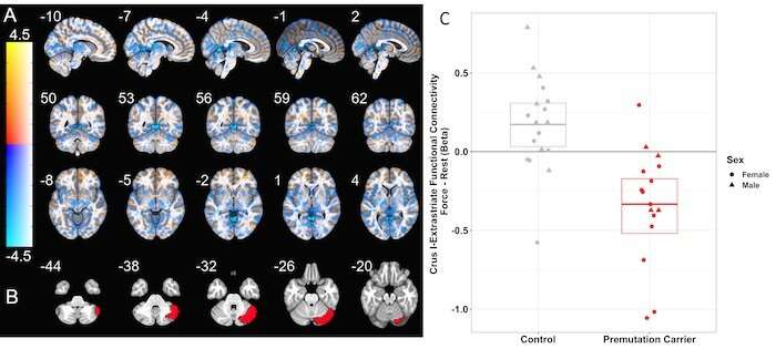Study reveals less connectivity between key brain regions in people with FXTAS premutation