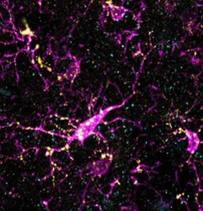 Hyperactive immune system gene causes schizophrenia-like changes in mice