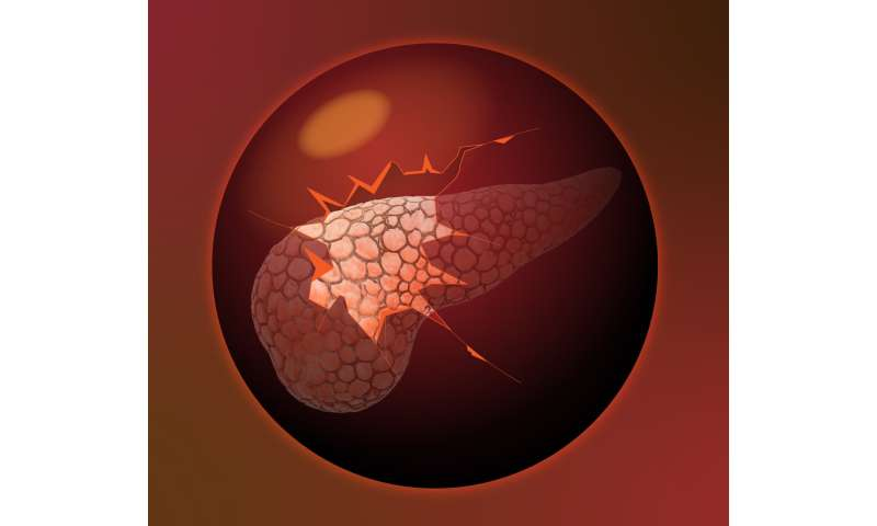 [Dialog] Disrupting cellular metabolism offers potential new way to tackle chemoresistance in pancreatic cancer cells
