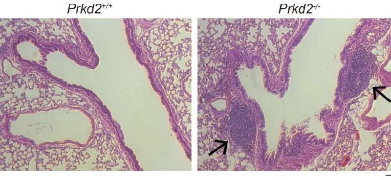Gene responsible for controlling activity of T follicular cells identified