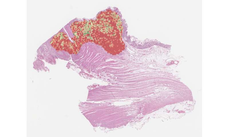 AI-based marker for colon cancer can help reduce over-and undertreatment of patients
