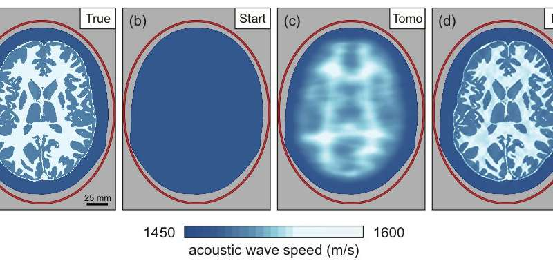 Seismic imaging technology could deliver finely detailed images of the human brain