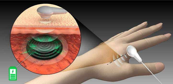 Remotely charge batteries through flesh for permanent implantable medical devices