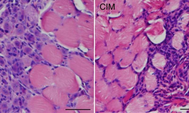Cells must age for muscles to regenerate in muscle-degenerating diseases