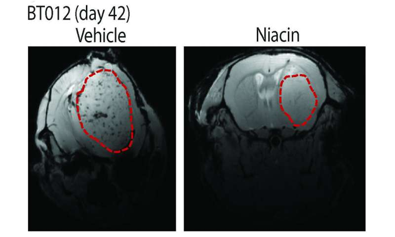 Study: Niacin may help immune system battle a deadly brain tumor