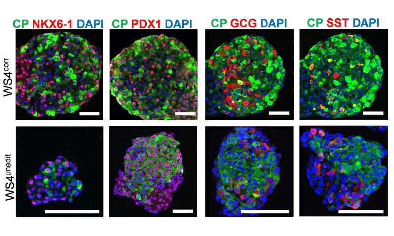 Diabetes reversed in mice with genetically edited stem cells derived from patients