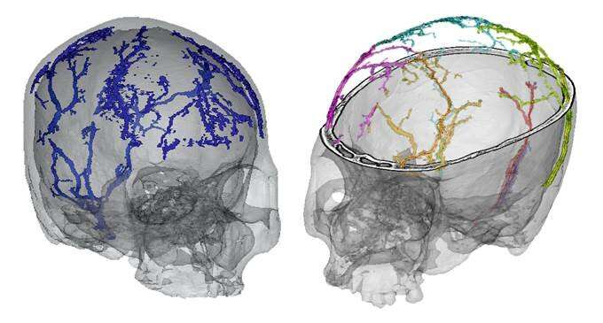 A study analyzes the growth and development of the diploic veins in modern humans
