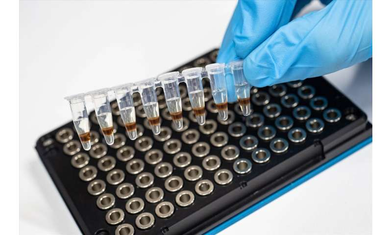 New links found between diabetes blood markers and Alzheimer's disease pathology