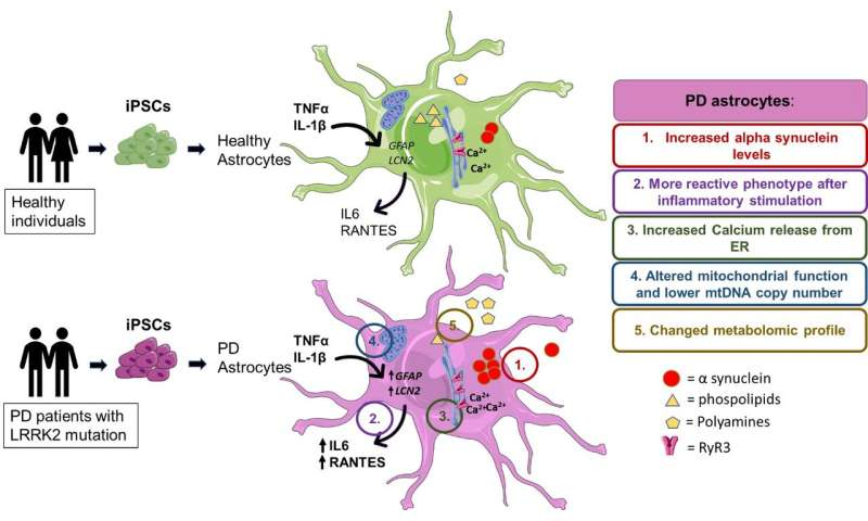 Brain astrocytes show metabolic alterations in Parkinson's disease