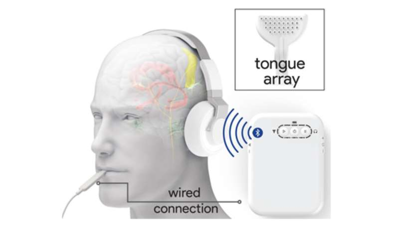 Non-invasive stimulation device to treat tinnitus shows positive results in clinical trials