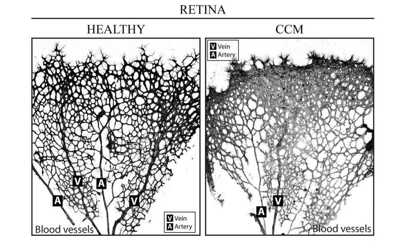 Venous origin of brain blood-vessel malformations