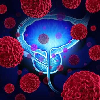 Prostate cancer: µ-crystallin (CRYM) protein inhibits tumour growth thumbnail