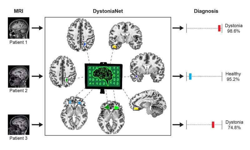 Artificial intelligence platform diagnoses dystonia with high accuracy in 0.36 seconds