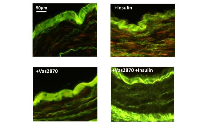 A new strategy to counter insulin damage in coronary artery disease