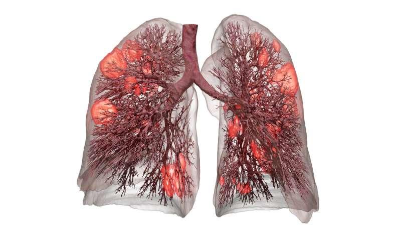 Computer model enables protective ventilation