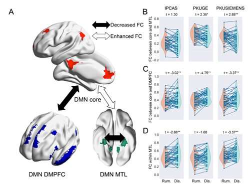 Researchers uncover network mechanism underlying rumination