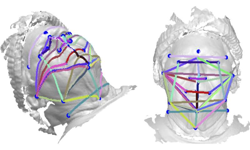 Study suggests 3D face photos could be a sleep apnea screening tool