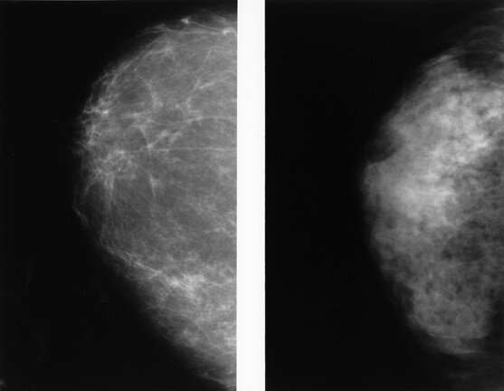 Abbreviated MRI outperforms 3D mammograms at finding cancer in dense breasts