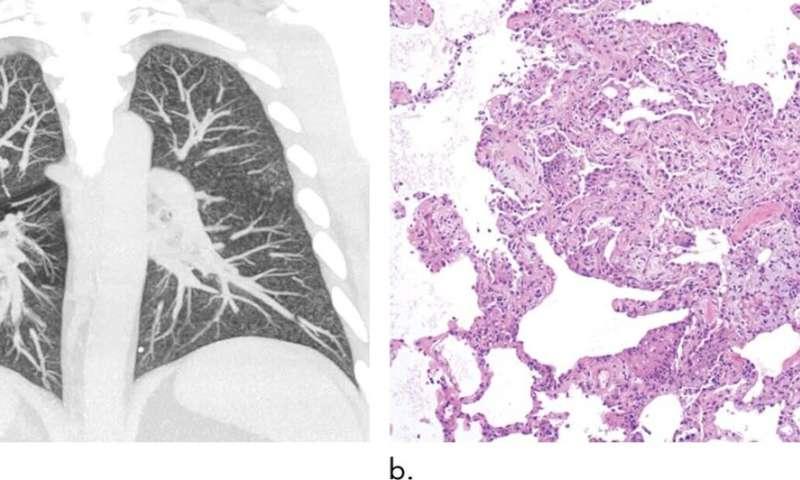 Abnormal imaging findings key to EVALI diagnosis in vapers