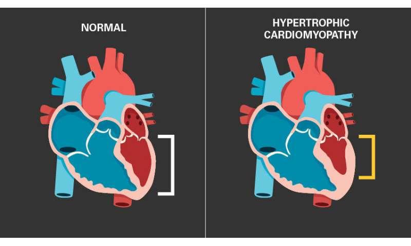 Un cambio de corazón: un nuevo fármaco para la MCH reduce la masa cardíaca