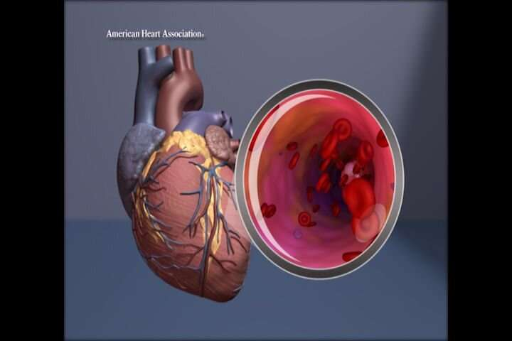 Additional heart imaging valuable for women with unexplained heart attacks