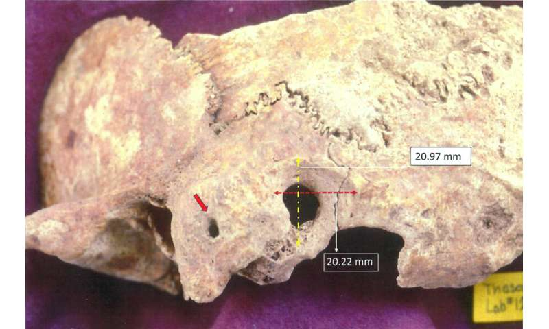 Adelphi researcher discovers early, complex brain surgery in ancient Greece