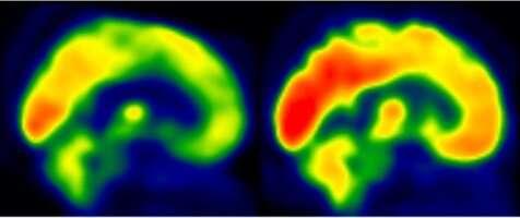 Aerobic exercise training linked to enhanced brain function