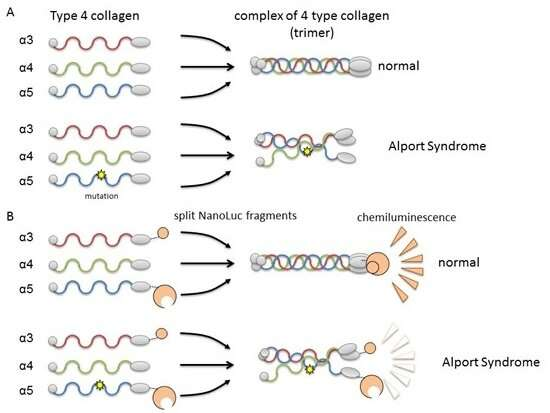 Alport syndrome severity can be predicted by causative protein genotype
