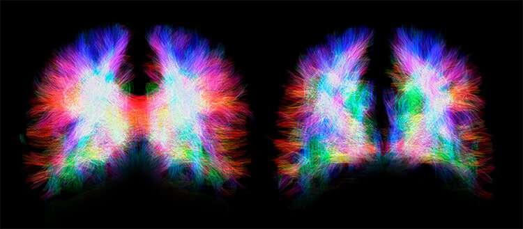 A malformation illustrates the incredible plasticity of the brain