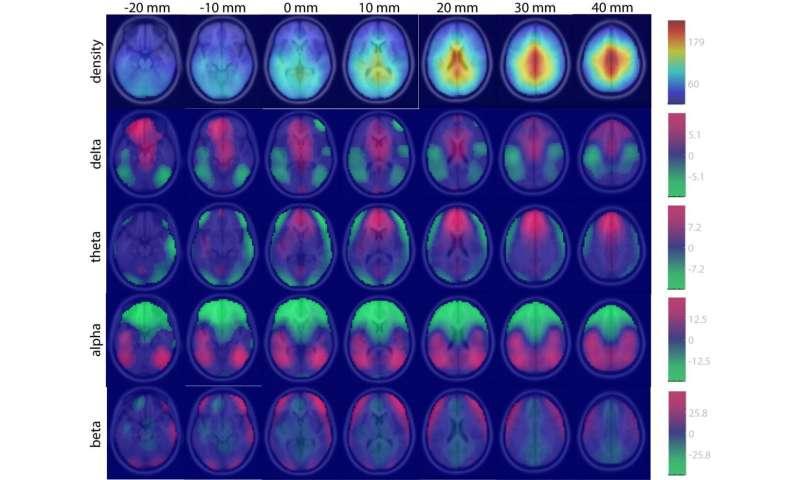 Army develops big data approach to neuroscience