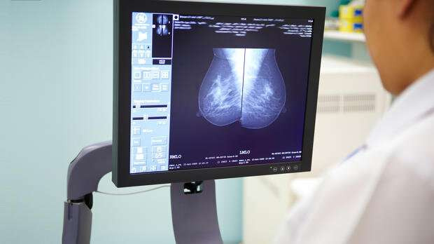 Artificial intelligence could help breast screening save more lives