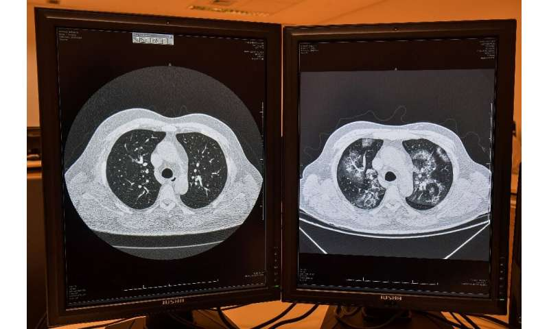 A tomography image of the same patient showing a healthy lungs (L) and lungs affected by COVID-19 (R) at the University of Sao P