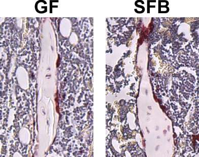 Bad to the bone: Specific gut bacterium impairs normal skeletal growth and maturation