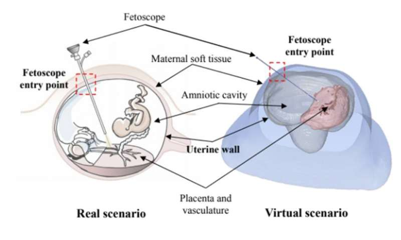 BCN MedTech presents an automatic method to detect and segment the intrauterine cavity
