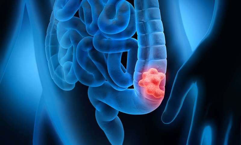 Better surgical outcomes for colorectal cancer patients in hospitals with high case load