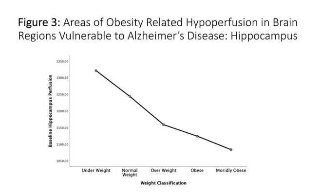 Body weight has surprising, alarming impact on brain function