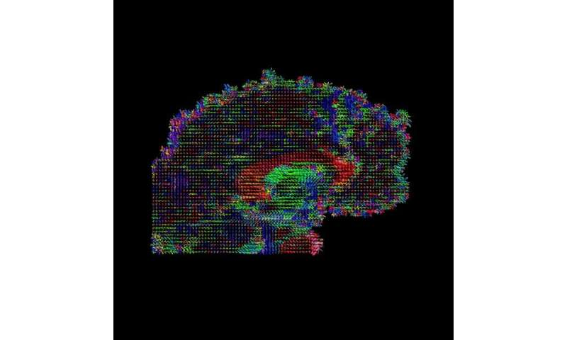 Brain thickness and connectivity, not just location, correlate with behavior