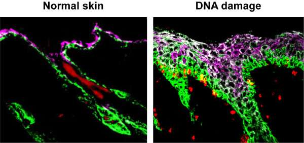 Chemotherapeutic agents can have the opposite effect of tissue overgrowth in normal tissues