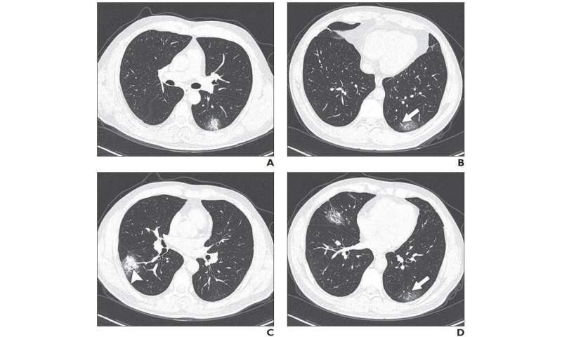 Chinese researchers detail chest CT findings in coronavirus disease (COVID-19) pneumonia