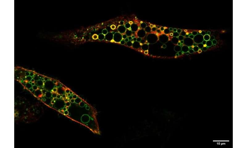 CLCN6 identified as disease gene for a severe form of lysosomal neurodegenerative disease
