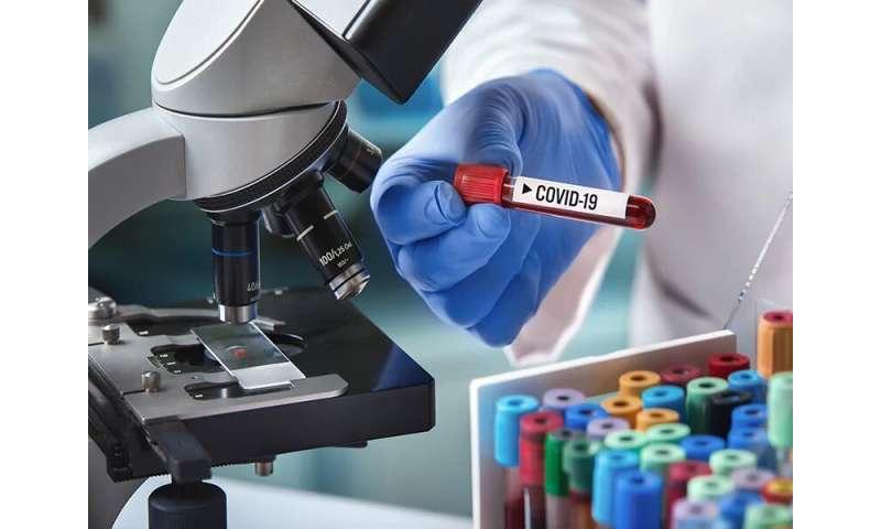 Clinical performance of SARS-COV-2 antibody tests varies