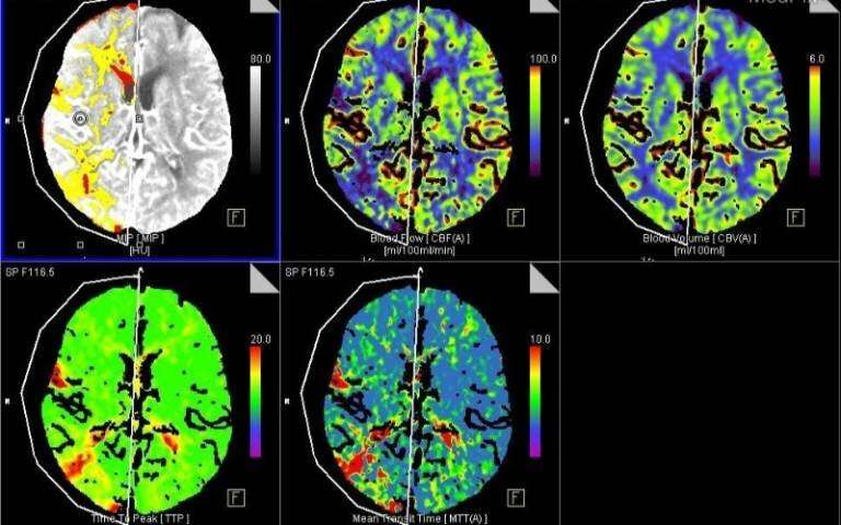 COVID-19 may increase blood clotting and blockage of brain blood vessels | UCL News - UCL – University College London